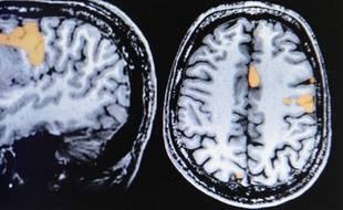 Illustration d'une tumeur du cerveau.