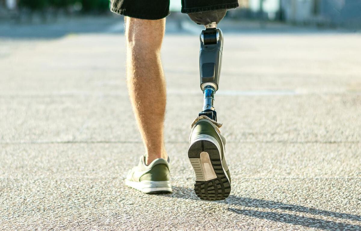 Handicap : Pourquoi la technologie « répare » (hélas) mieux les corps que les individus