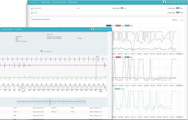 Illustration d'Implicity, outil technologique qui permet d'analyser quantité de données en cardiologie notamment.
