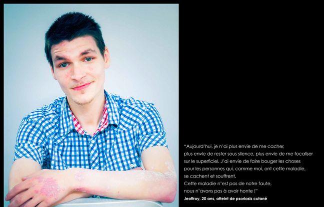 Une photo exposée à Citizen Pso dévoile grâce à des portraits et témoignages ce qu'implique cette maladie de peau.