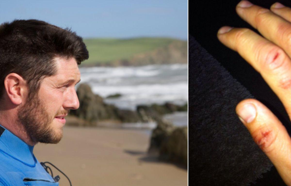 Rich Thompson aurait été attaqué par un requin au large des côtes anglaises (capture d'écran BBC). – BBC