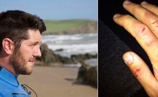 Rich Thompson aurait été attaqué par un requin au large des côtes anglaises (capture d'écran BBC).