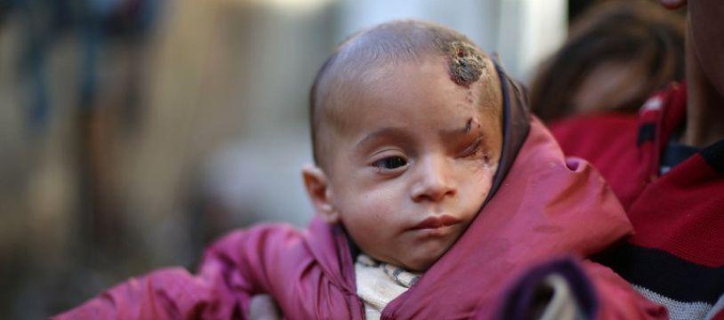 Karim Abdallah, un nourrisson syrien, a perdu son oeil gauche lors d'un raid aérien visant son quartier de la Ghouta, zone assiégée par le régime de Bachar al-Assad.
