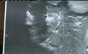 Une Américaine a vu Jésus apparaître dans son IRM, en octobre 2010.