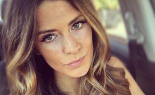 L'ex-mannequin Breanna Rice a révélé sur son compte Instagram fin juin 2016 être atteinte de vitiligo.