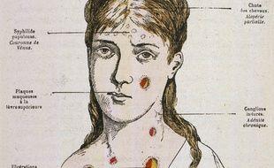 Les symptômes de la syphilis, décrits en 1883.