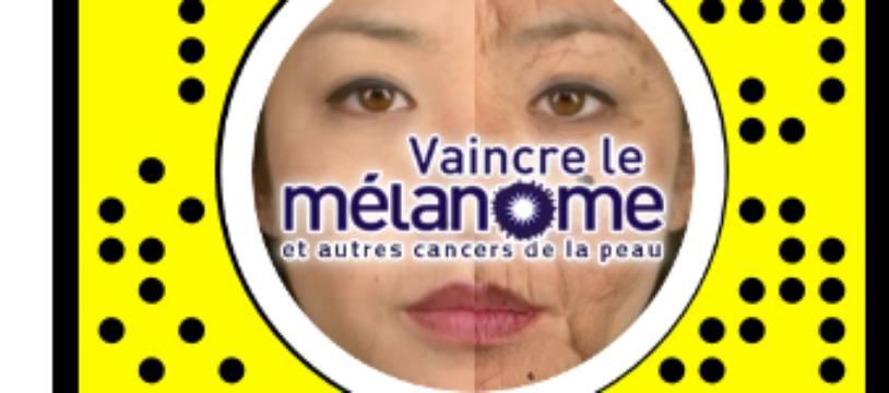 L'association Vaincre le mélanome lance un filtre sur Snapchat pour sensibiliser les jeunes aux effets du soleil sans protection.