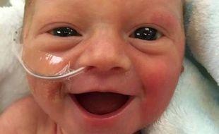 Le sourire d'un bébé, né prématuré en novembre 2014 dans l'Etat américain du Minnesota, est devenu viral sur la Toile en octobre 2016.