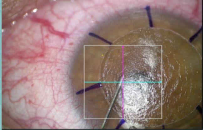 Quand la cornée s'opacifie, il faut alors passer à la greffe de cornée. Une opération méticuleuse qui permet à des personnes malvoyantes de recouvrer la vue.
