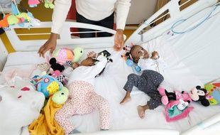Bissie et Eyenga, soeurs siamoises, ont été séparées à Lyon en novembre 2019
