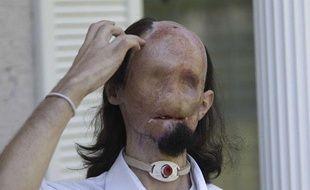 Dallas Wiens en octobre 2010, avant la greffe totale du visage subie en mars 2011.