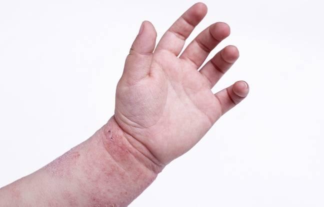 Illustration d'une main d'enfant atteint d'eczéma.