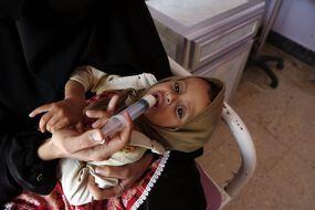 5,5 milliards de dollars de fonds supplémentaires ont été réclamés par des ONG afin de lutter contre la famine dans le monde. (Illustration d'un enfant souffrant de malnutrition au Yemen)