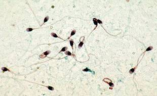"""Les spermatozoïdes sont de meilleure """"qualité"""" s'ils sont évacués du corps fréquemment"""