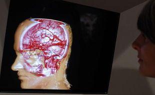 Imagerie cérébrale en 3D.