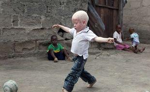 Yusufu, enfant albinos, a Dar es Salam, en Tanzanie, en 2010.