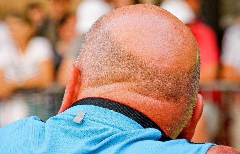 Médicament anti-calvitie : Les patients mieux informés sur les effets indésirables