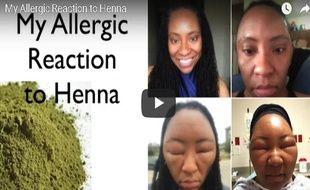 Allergie a une coloration cheveux