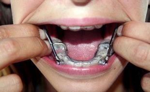 Illustration d'un appareil dentaire.