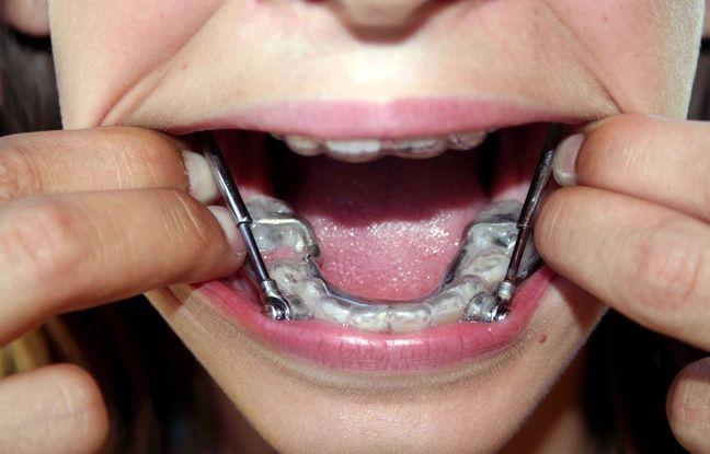 adolescents l 39 alerte des dentistes contre les appareils faits maison. Black Bedroom Furniture Sets. Home Design Ideas