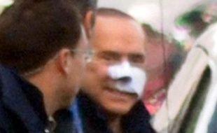 Silvio Berlusconi quitte l'hôpital après son agression par un déséquilibré, le 17 décembre 2009.