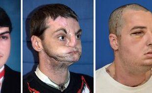 Richard Norris, avant et après son accident en 1997, puis après sa greffe du visage en 2012.