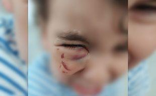 Un enfant de 2 ans a été blessé par une toxicomane, près de Stalingrad