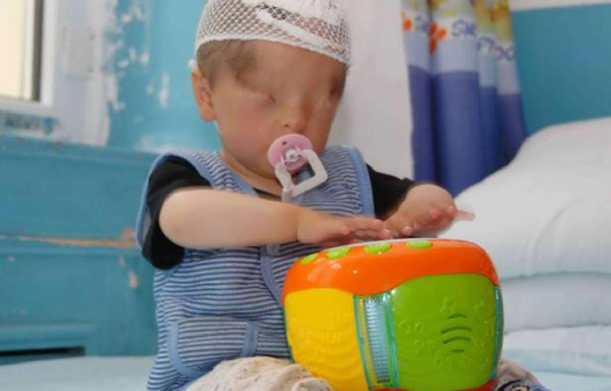 Marwanijung, un bébé chinois né avec de la peau sur les yeux, le 6 juin 2012, à Urumqi (Chine). – QUIRKY CHINA NEWS / REX FEATURES / SIPA