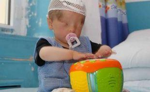 Marwanijung, un bébé chinois né avec de la peau sur les yeux, le 6 juin 2012, à Urumqi (Chine).
