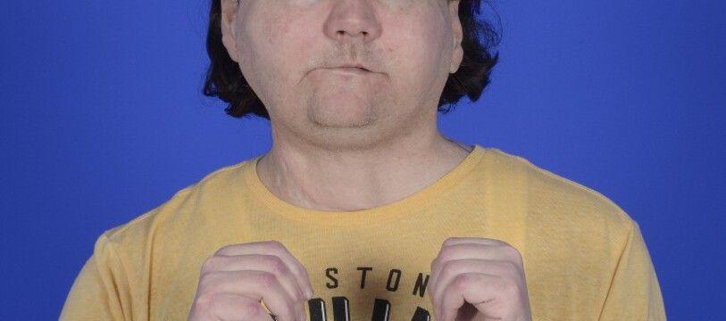 Joe Dimeo, le jeune homme de 22 ans, qui a reçu une triple greffe du visage et des deux mains.