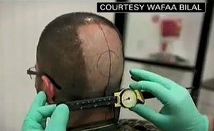 Capture d'écran d'un reportage de CNN sur Wafaa Bilal, qui s'est fait greffer une caméra derrière la tête.