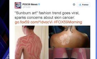eb129bf0866800 Le tatouage-coup de soleil, une mode qui inquiète les médecins