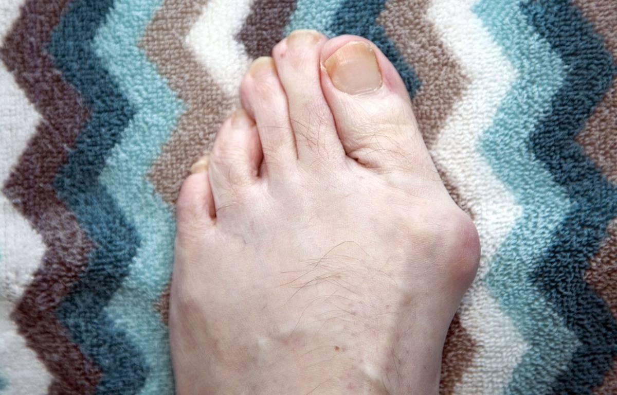 L'hallux valgus peut entraîner une déformation douloureuse du pied. –  J.Blackler/REX/REX/SIPA