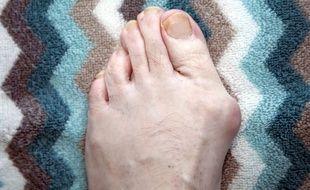 L'hallux valgus peut entraîner une déformation douloureuse du pied.
