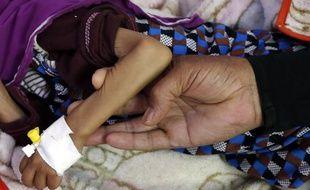 Un enfant souffrant de malnutrition au Yemen, le 19 mai 2019.