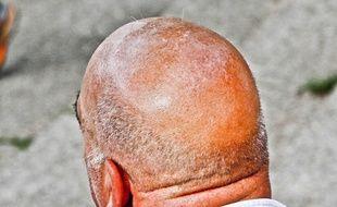 Illustration d'un crâne chauve.