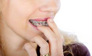 Complexés par leur sourire, certains se font poser un appareil dentaire à l'âge adulte pour corriger leur dentition.