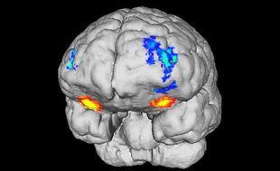 Des chercheurs lyonnais ont découvert que des zones différentes du cerveau sont stimulées par les plaisirs liés au sexe et à l'argent.