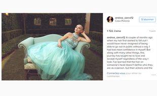 Andrea Sierra Salazar, jeune mannequin mexicain ayant perdu ses cheveux suite à une chimiothérapie, a posé en août 2016 pour une série de photos glamour. Son exemple redonne du courage aux autres patients.