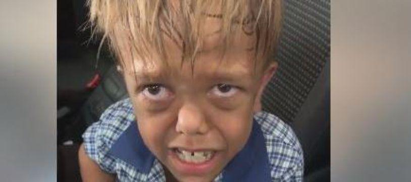Le jeune Quaden est victime de harcèlement à l'école à cause de son nanisme.