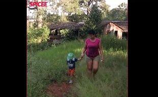 Lucas, 5 ans, est atteint d'une maladie incurable de la peau, «Ichthyosis lamellar», du fait de la mutation d'un gène.