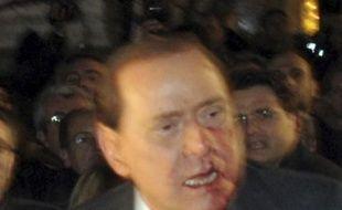 Silvio Berlusconi, touché par un coup de poing à Milan, le 13 décembre 2009.