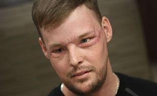 L'Américain Andy Sandness a reçu une greffe totale du visage à la Mayo Clinic de Rochester dans le Minnesota (Etats-Unis) le 24 janvier 2017.