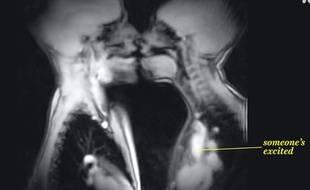 Un baiser vu par IRM.