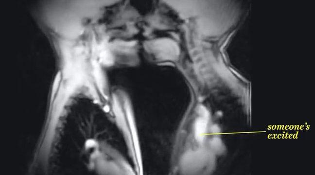 Un baiser vu par IRM. – Capture d'écran