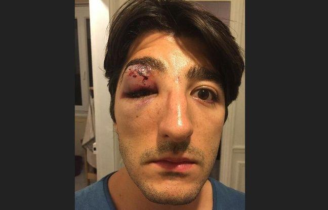 Arnaud Gagnoud a été agressé à Paris alors qu'il se trouvait avec son compagnon. La photo a été prise le lendemain de l'agression.