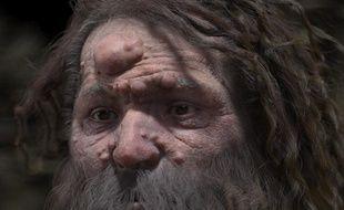 Le célèbre homme de Cro-Magnon avait le visage couvert de nodules