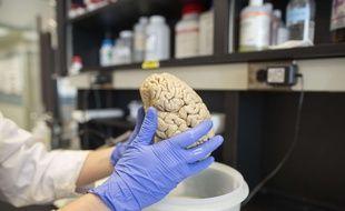 Un cerveau humain dans le laboratoire de recherche en neurologie de l'université Northwestern à Chicago le 29 juillet 2013.