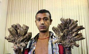 Âgé de 27 ans, Abul est incapable de travailler depuis des années à cause de sa maladie.