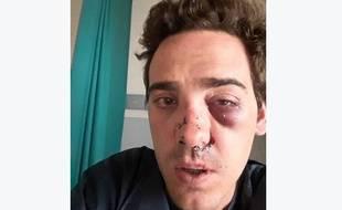 Capture d'écran de la photo publiée sur le compte Facebook d'Alexandre, violemment agressé par des taxis.